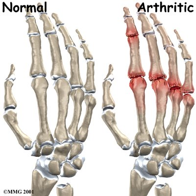 hand_finger_joint_causes01-719508